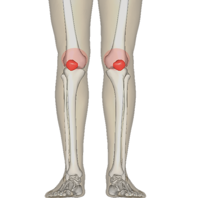 """Image illustrating the areas affected by w:en:Patellofemoral pain syndrome"" by BodyParts3D/Anatomography under Licence CC BY 2.1"
